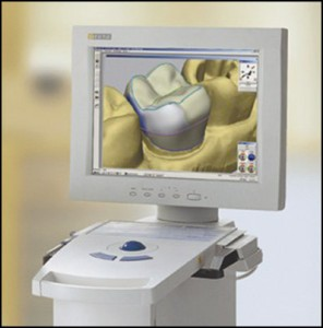 CEREC technology rochester hills, MI