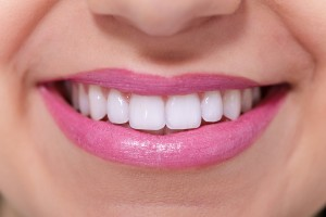 dental whitening services