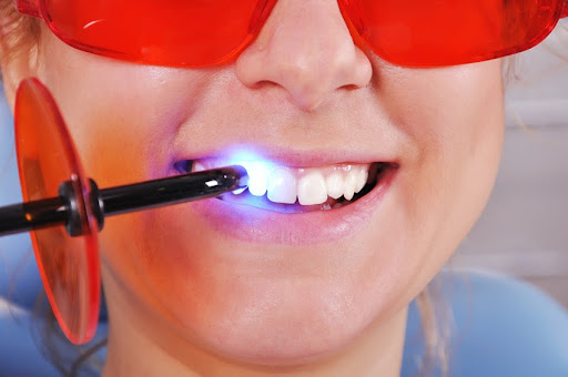 Do's and Don'ts Before and After Teeth Whitening