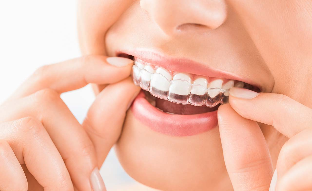 Issues That Require Restorative Dentistry Services